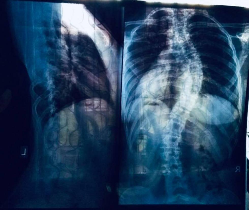 Лікарі виявили у Альони Захарчук сколіоз